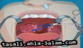 لعبة قلع الأسنان